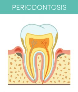 Tooth diseases: periodontosis, vector cartoon illustration