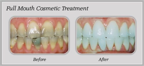mouth cosmetic treatment before and after