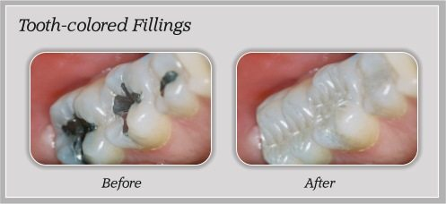 tooth colored fillings before and after