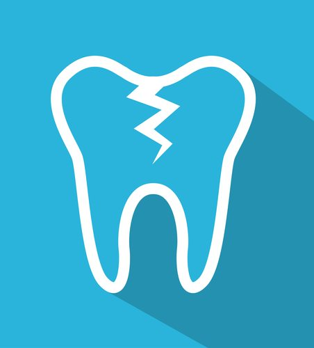 blue graphic vector of tooth with crack down the middle