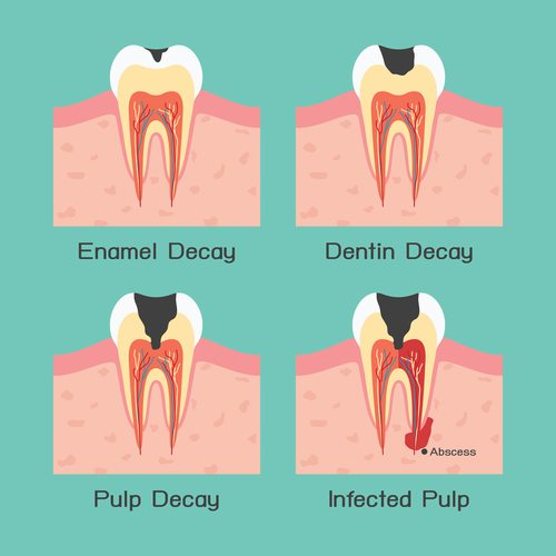 Diagram that illustrates enamel decay, dentin decay, pulp decay, and infected pulp
